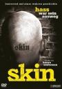 Skin - Hass war sein Ausweg